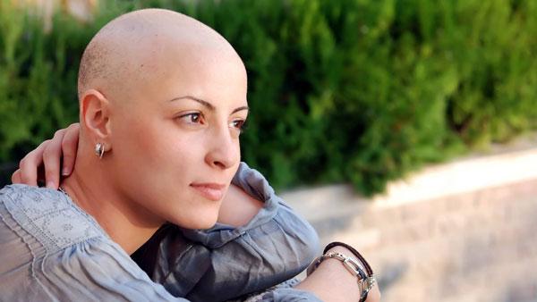 ریزش موها و سرطان