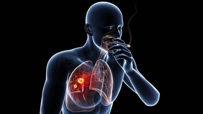 سیگار کشیدن و سرطان