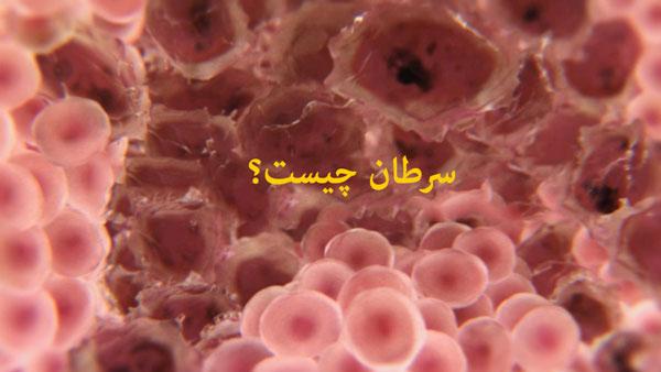 علائم شایع سرطان   بیماری سرطان   جهش ژن   تغییرات پوستی