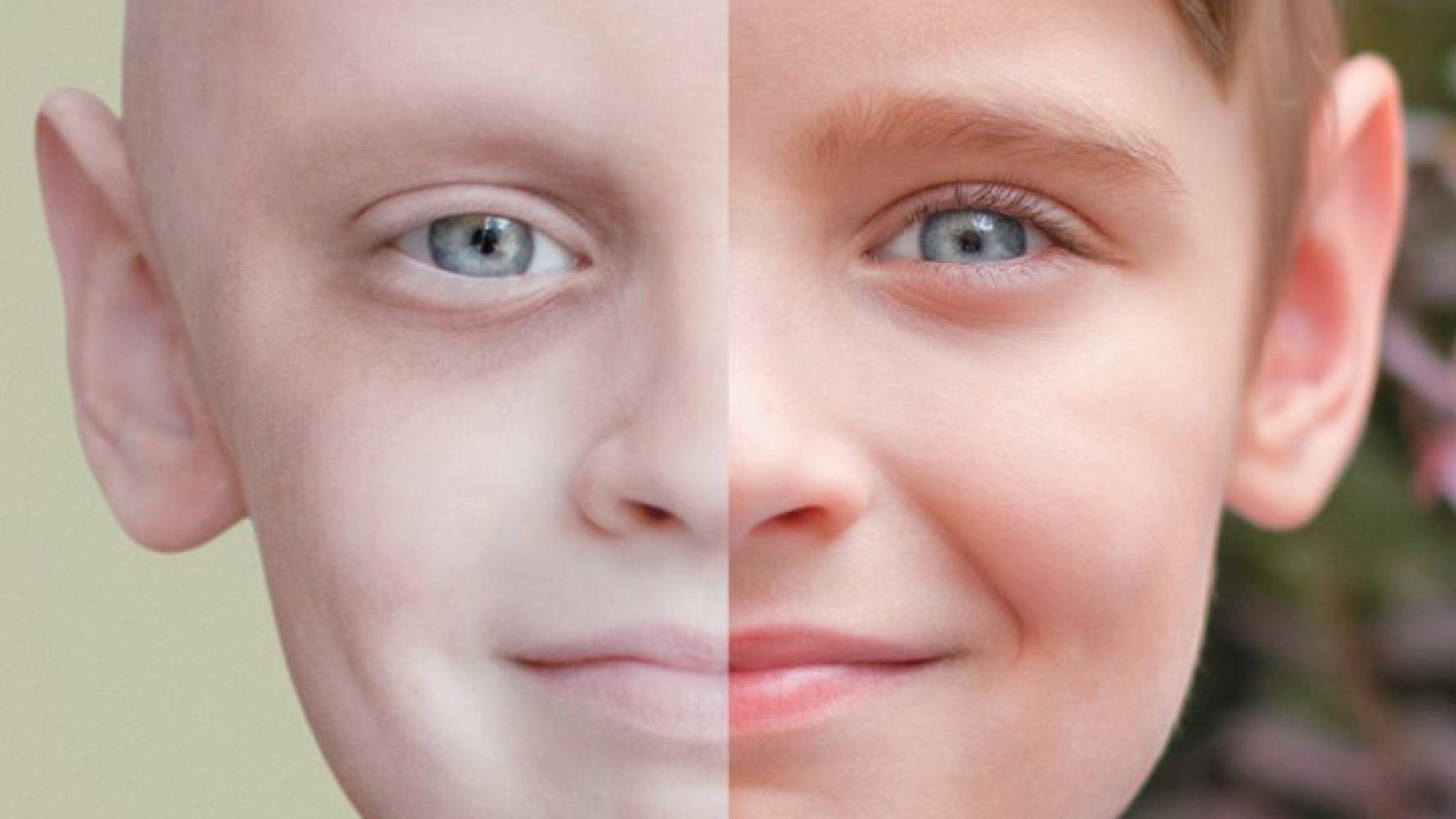 تغییرات ظاهری در اثر سرطان   بیماری سرطان   پیشگیری از سرطان