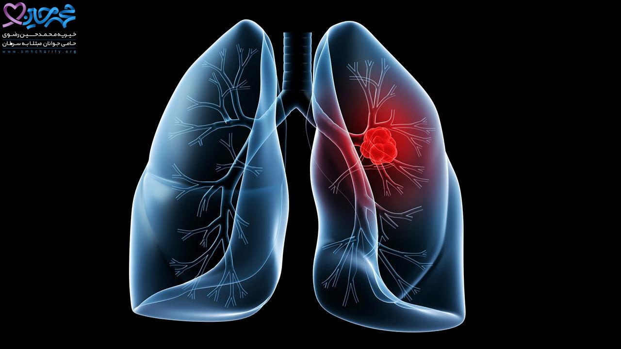 سرطان ریه|پیشگیری از سرطان ریه|درمان سرطان ریه|سرطان ریه در زنان|نشانه های سرطان ریه در زنان و مردان|بروز نشانه های سرطان ریه در زنان|نشانه های سرطان ریه در زنان سیگاری|