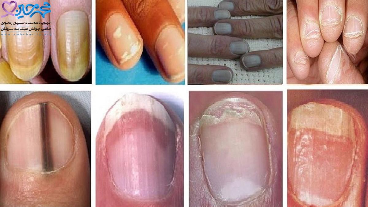 تشخیص سرطان پوست از روی ناخن|سرطان پوست|پیشگیری از سرطان پوست|درمان سرطان پوست|انواع سرطان پوست|ابتلا به سرطان پوست|روش های درمانی سرطان پوست|