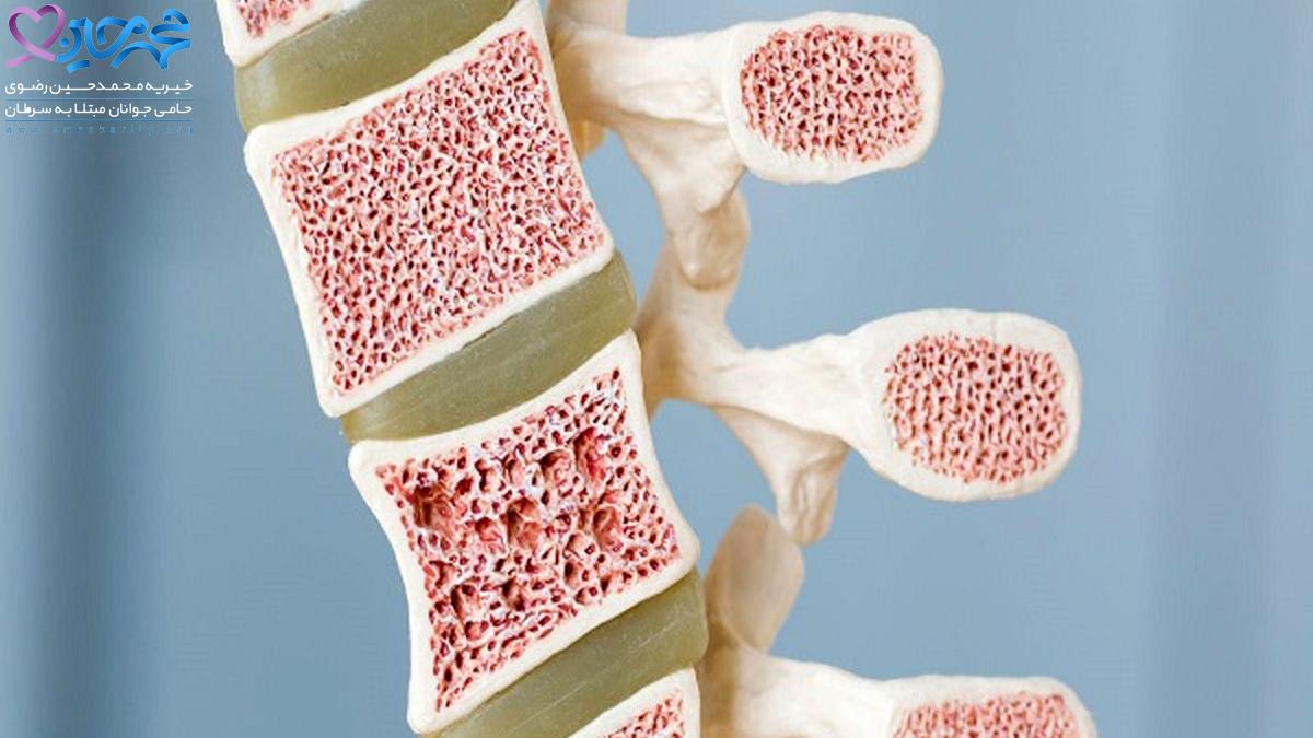 سرطان مغز استخوان  درمان سرطان  پیشگیری از سرطان مغزاستخوان  ابتلا به سرطان