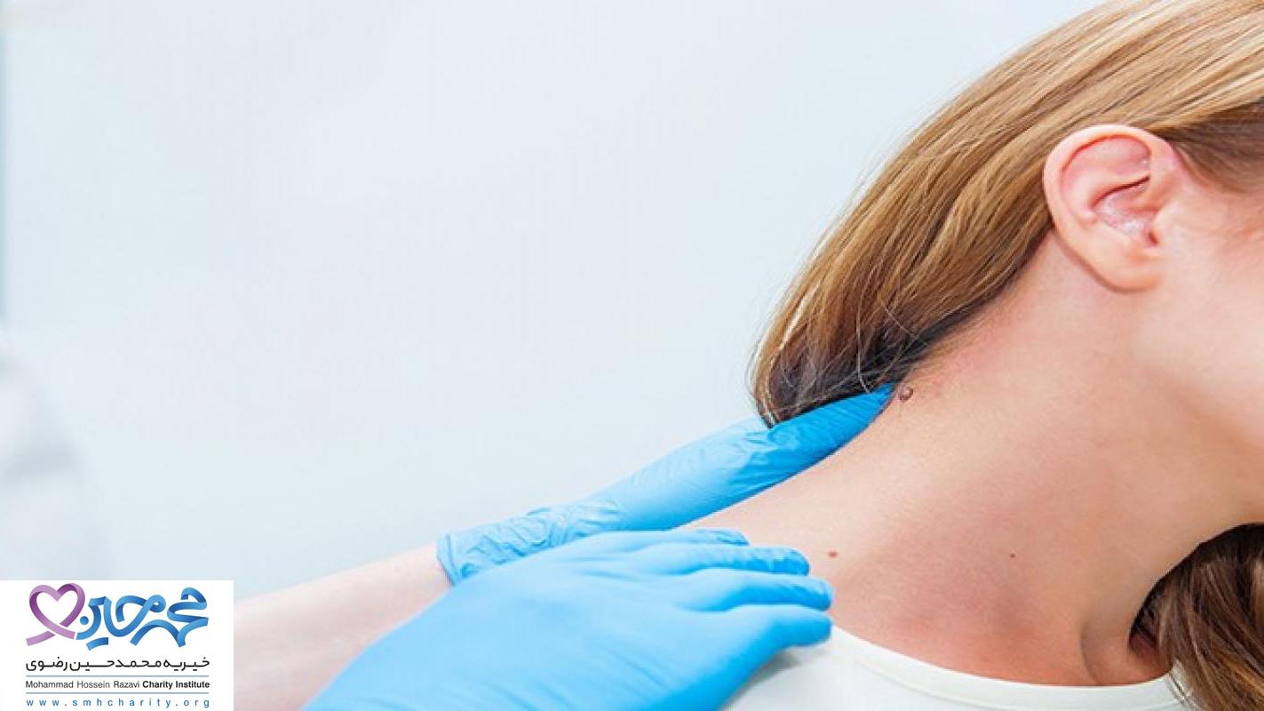 سرطان پوست  انواع سرطان پوست  درمان سرطان پوست  پیشگیری از سرطان پوست