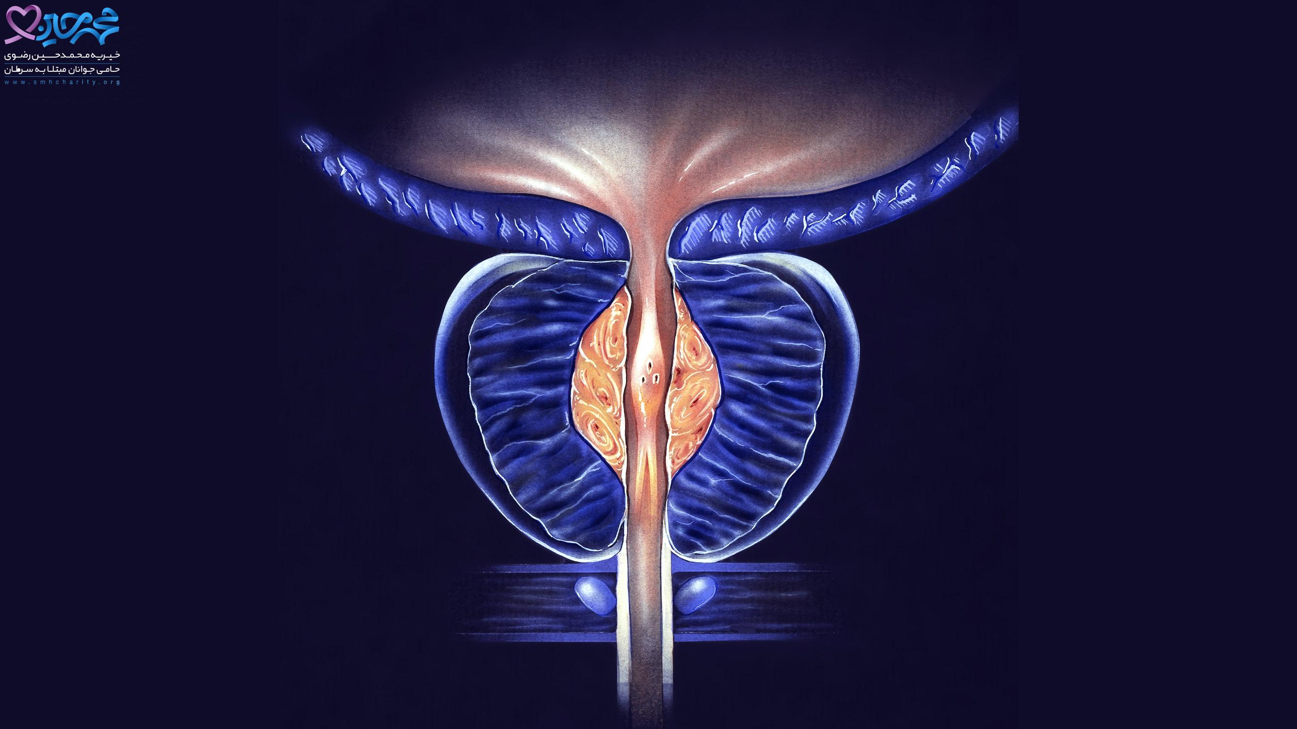 آیا بزرگ شدن پروستات خطرناک است و منجر به سرطان می شود؟