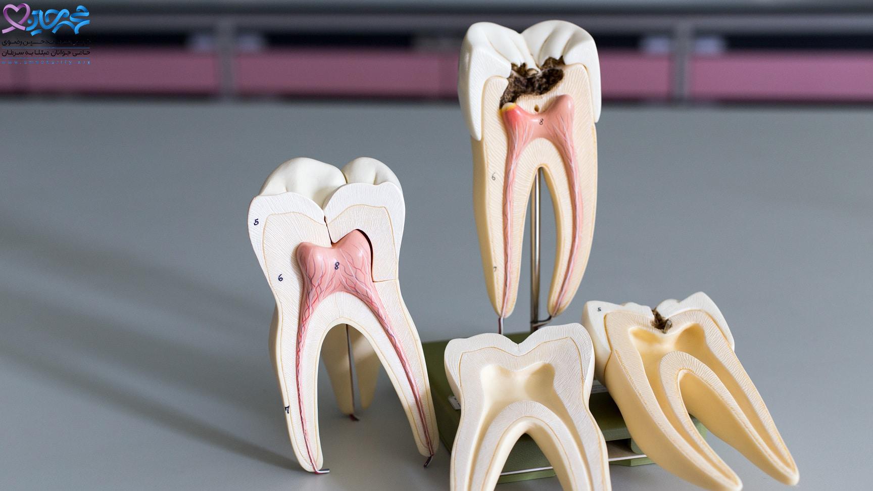 آیا درمان ریشه دندان باعث سرطان می شود؟