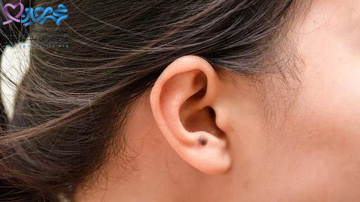 علائم سرطان لاله گوش چیست؟