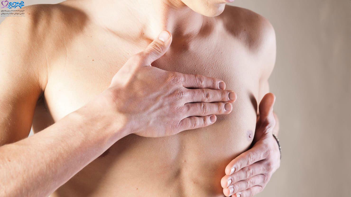 هورمون درمانی و پرتودرمانی سرطان سینه مردان