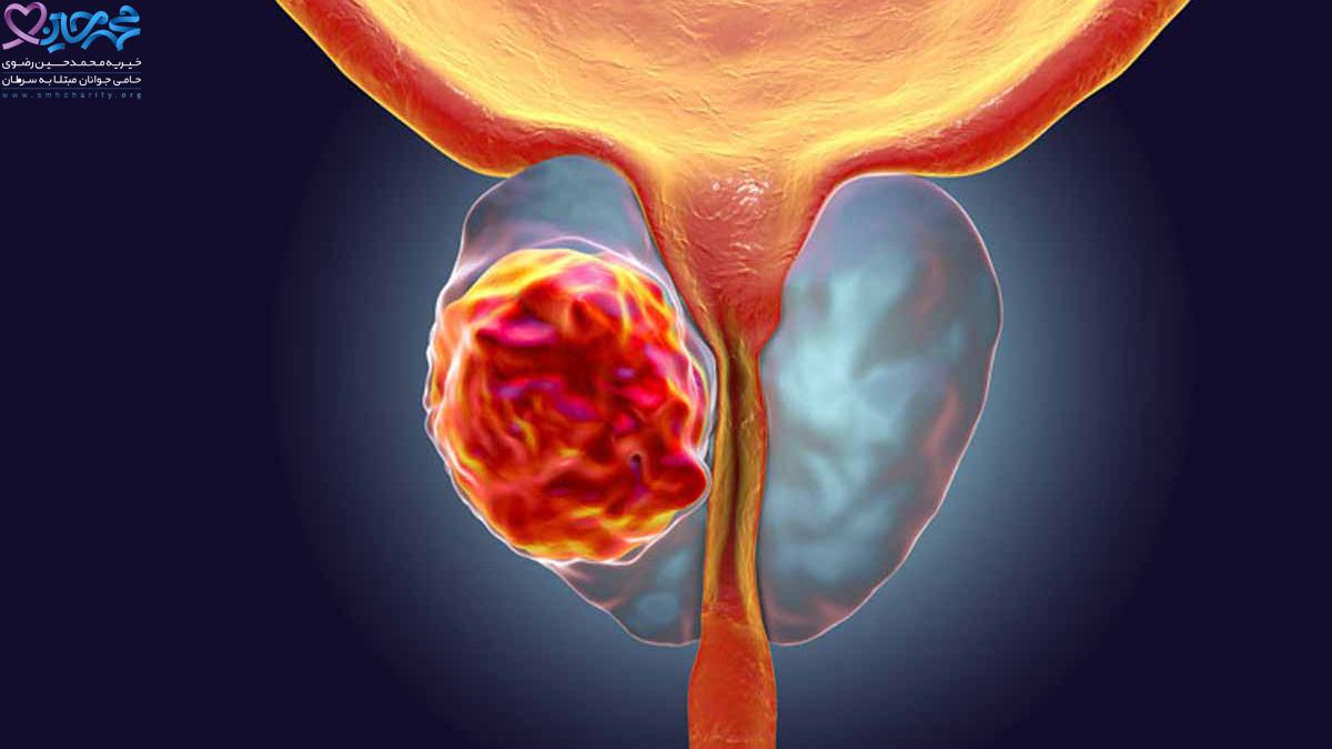 نقش شیمی درمانی در درمان سرطان پروستات
