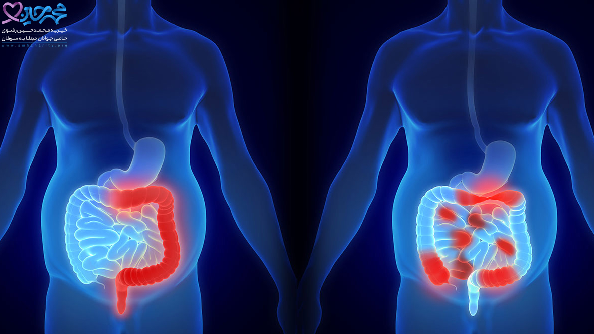 شیمی درمانی چگونه به درمان سرطان روده بزرگ کمک می کند؟