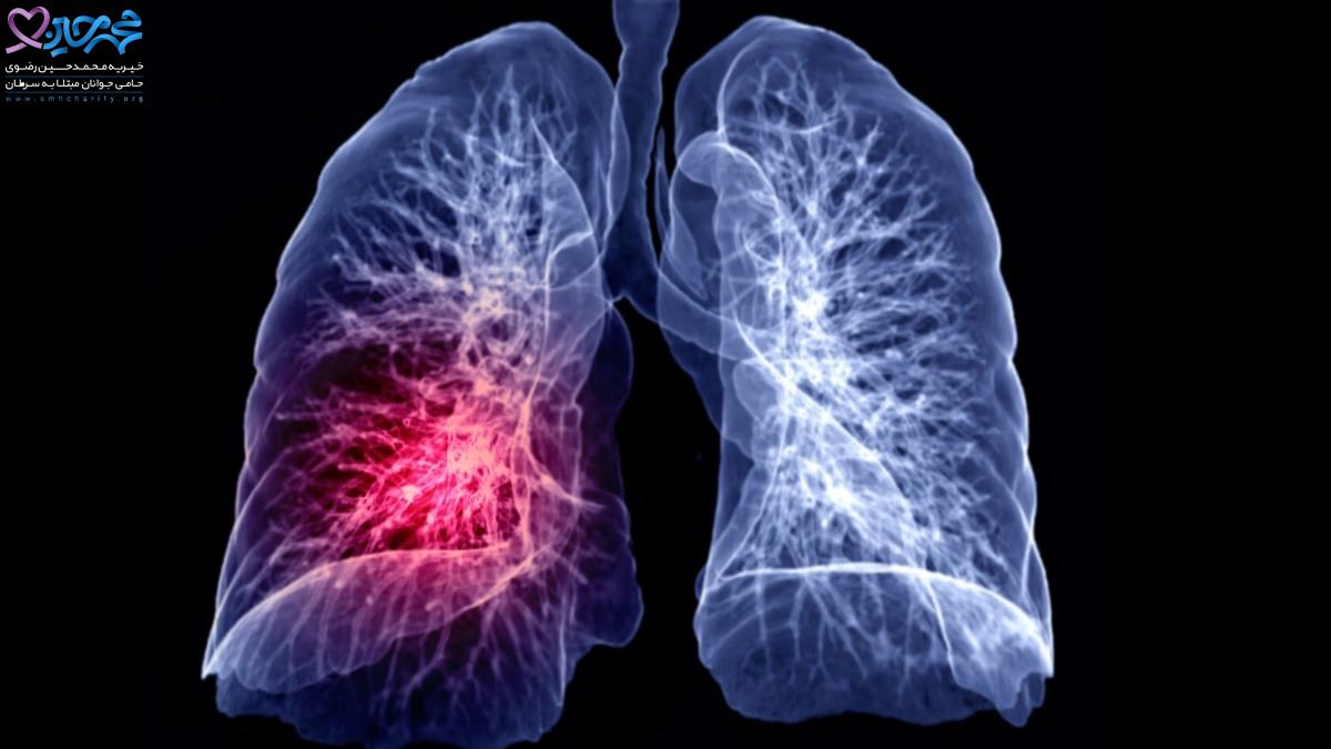 عوامل خطر سرطان ریه را بشناسید