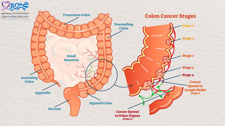 متاستاز سرطان روده بزرگ