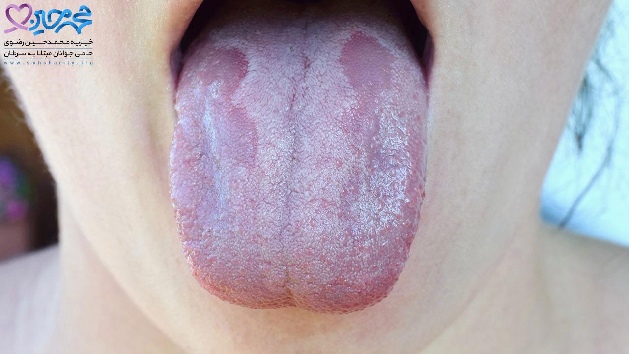 برفک دهان و سرطان