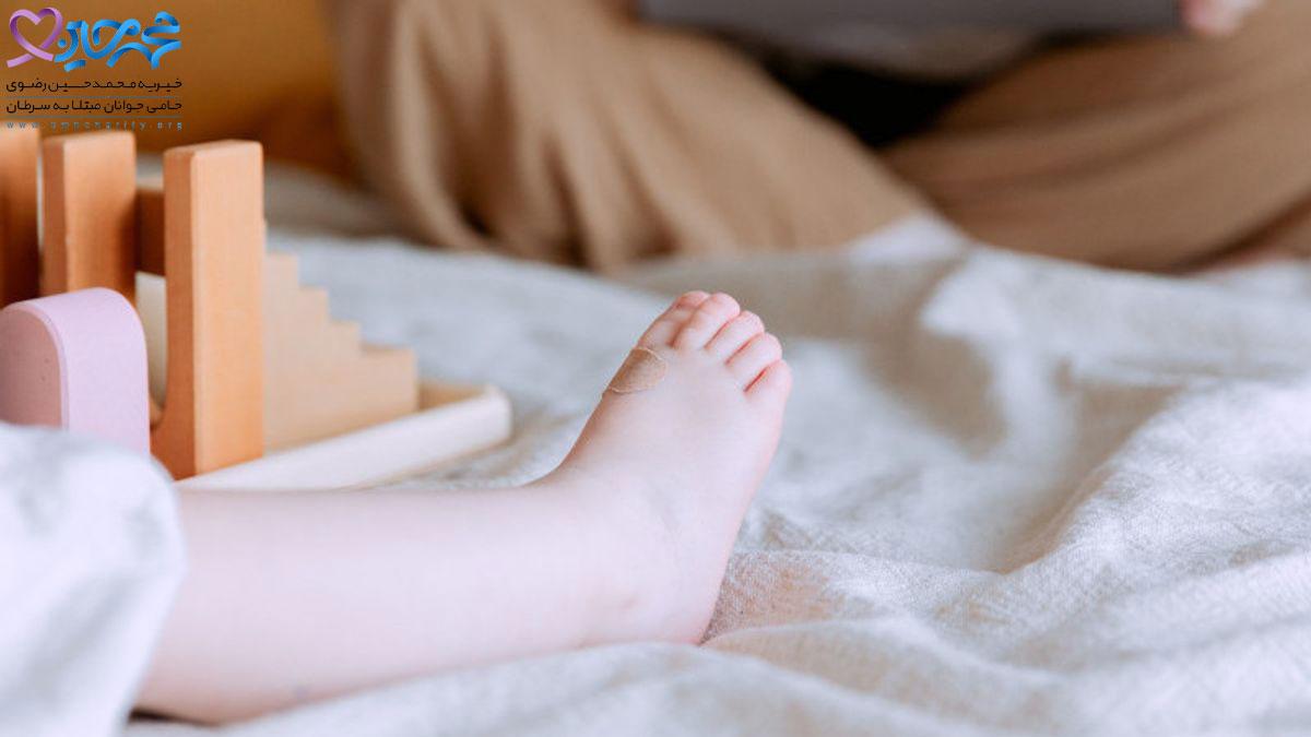 سرطان استخوان در کودکان و علائم آن