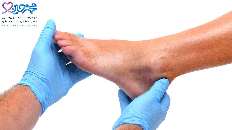 نشانه های سرطان در پا و قوزک پا کدام است؟