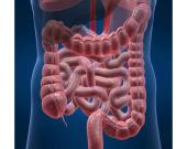 سرطان روده ی بزرگ چیست ؟