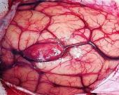 سرطان مغز چیست ؟