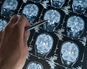 سردردهای تومور مغزی چیست؟