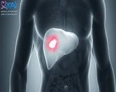 طول عمر سرطان متاستاتیک کبد چقدر است؟