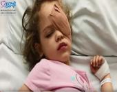 روش های درمانی سرطان چشم در کودکان