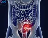سرطان روده متاستاتیک چیست و چه علائمی دارد؟