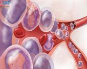 علائم سرطان خون و عوامل خطر آن
