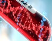 آیا عفونت خون همان سرطان است؟