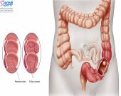 علائم اولیه سرطان روده در زنان